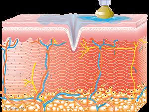 Collagen Synthesis Begins | TempSure