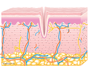Untreated Skin/Collagen Remodeling Occurs | TempSure