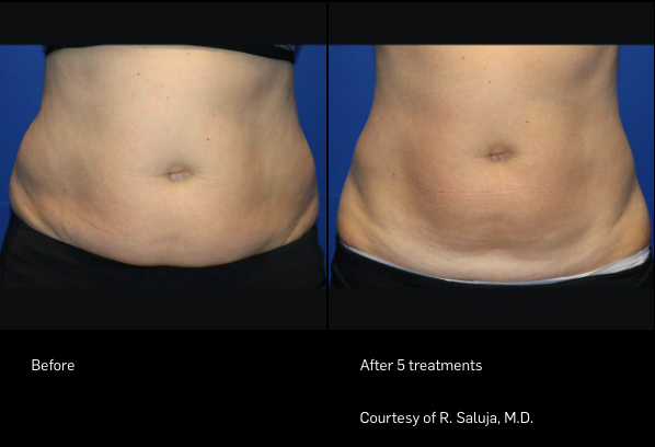 FlexSure Before & After Stomach