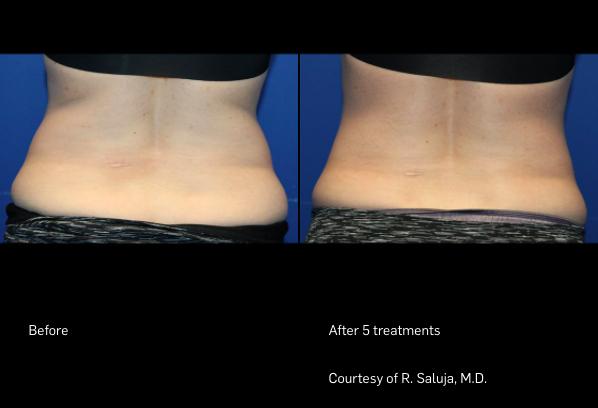 FlexSure Before & After Back