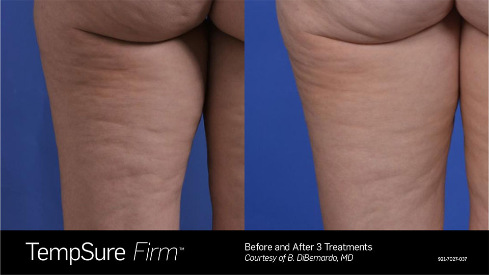 TempSure Firm Before & After Back of Legs