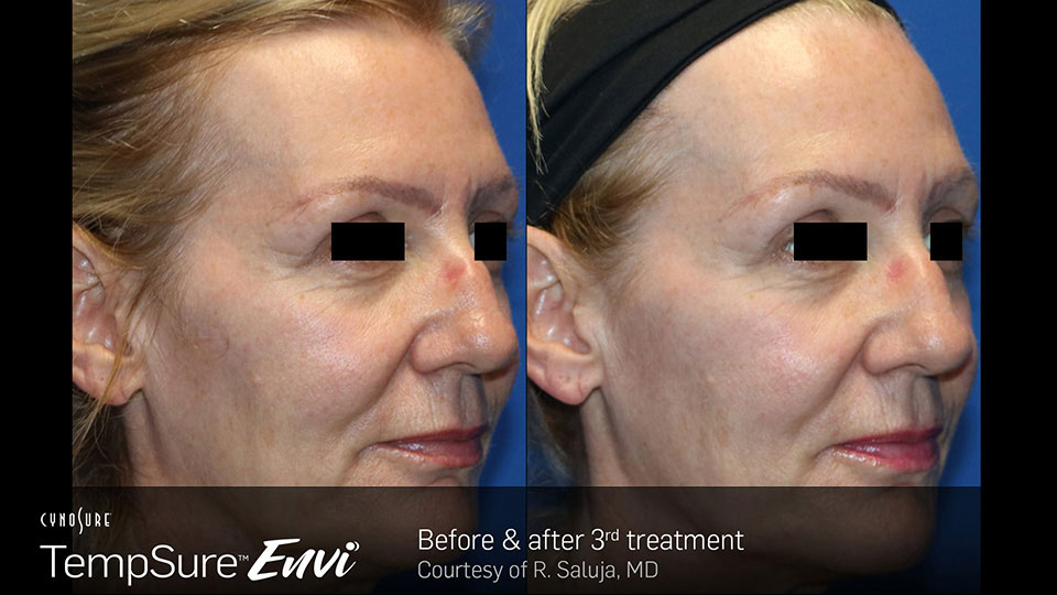 TempSure Envi Before and After Face