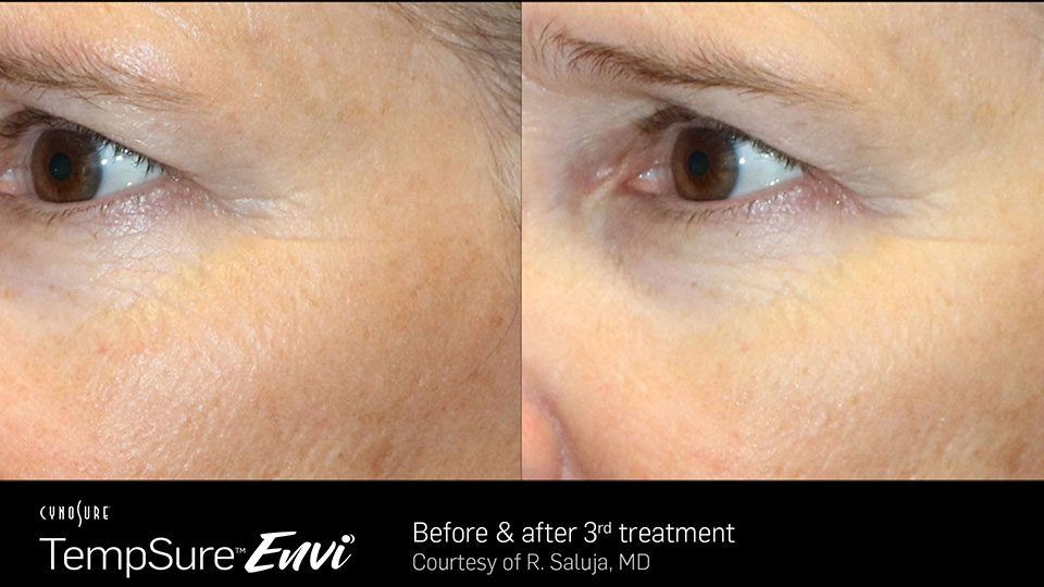 TempSure Envi Before and After Close up of eye