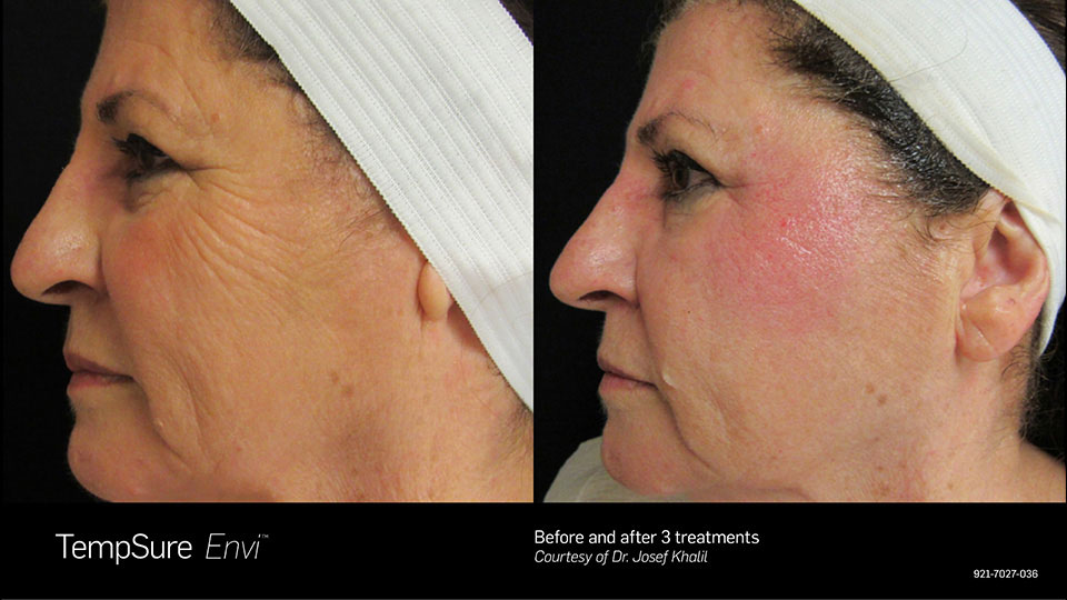 TempSure Envi Before and After Side Profile